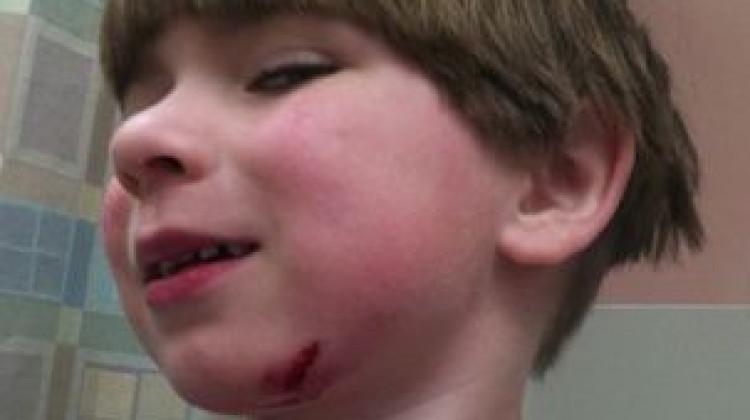 Mason's First Stitches!
